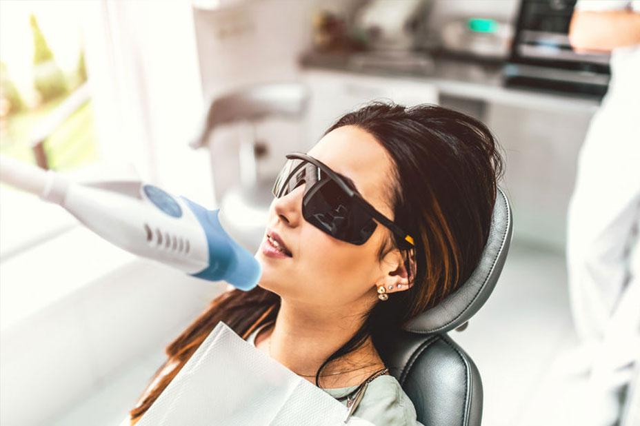 bielenie zubov esthemed